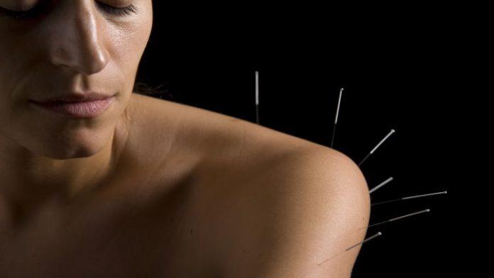 Βελονισμός | Θεραπεία για το σώμα και τη ψυχή