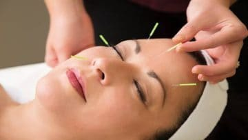 Σεμινάριο Αισθητικού Βελονισμού | Anima Healing Center